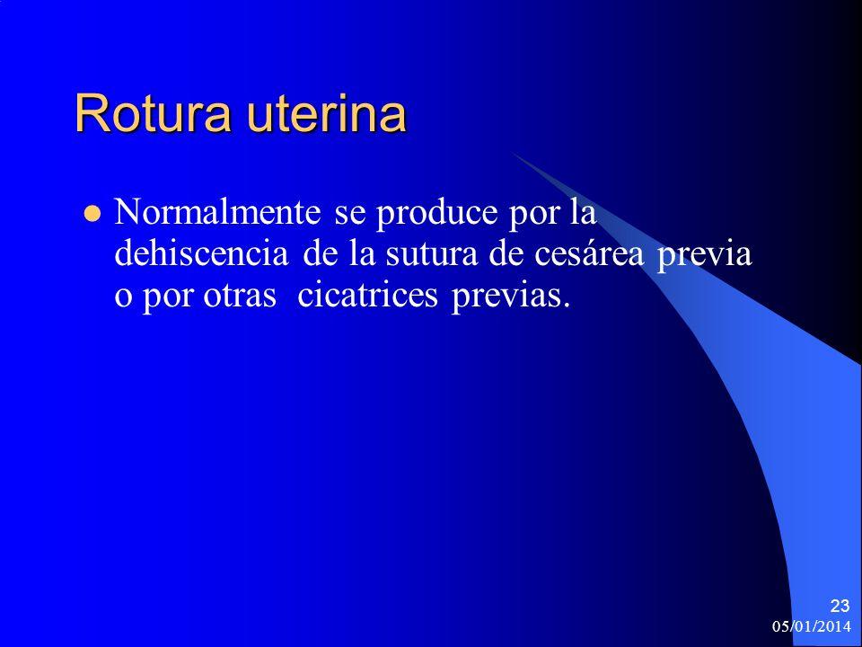 Rotura uterinaNormalmente se produce por la dehiscencia de la sutura de cesárea previa o por otras cicatrices previas.