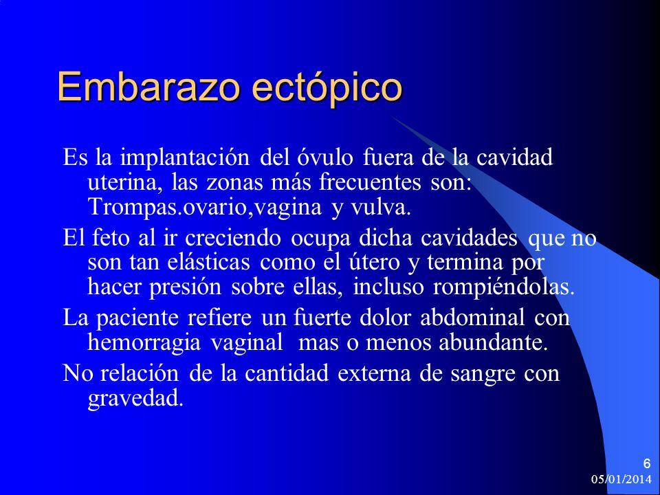 Embarazo ectópico Es la implantación del óvulo fuera de la cavidad uterina, las zonas más frecuentes son: Trompas.ovario,vagina y vulva.