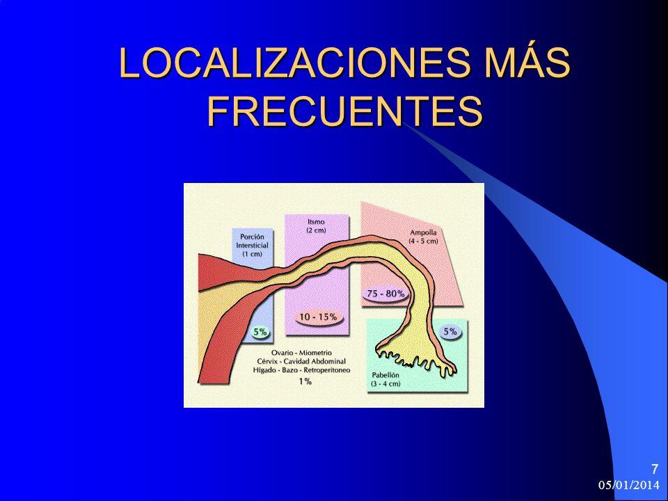 LOCALIZACIONES MÁS FRECUENTES