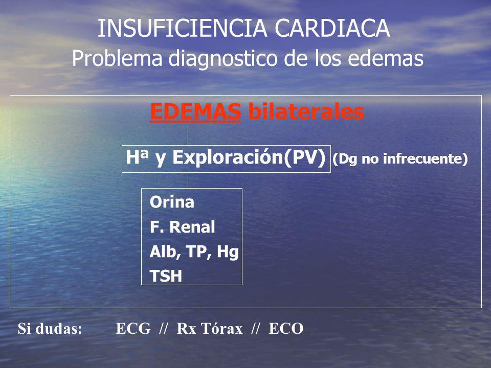INSUFICIENCIA CARDIACA Problema diagnostico de los edemas