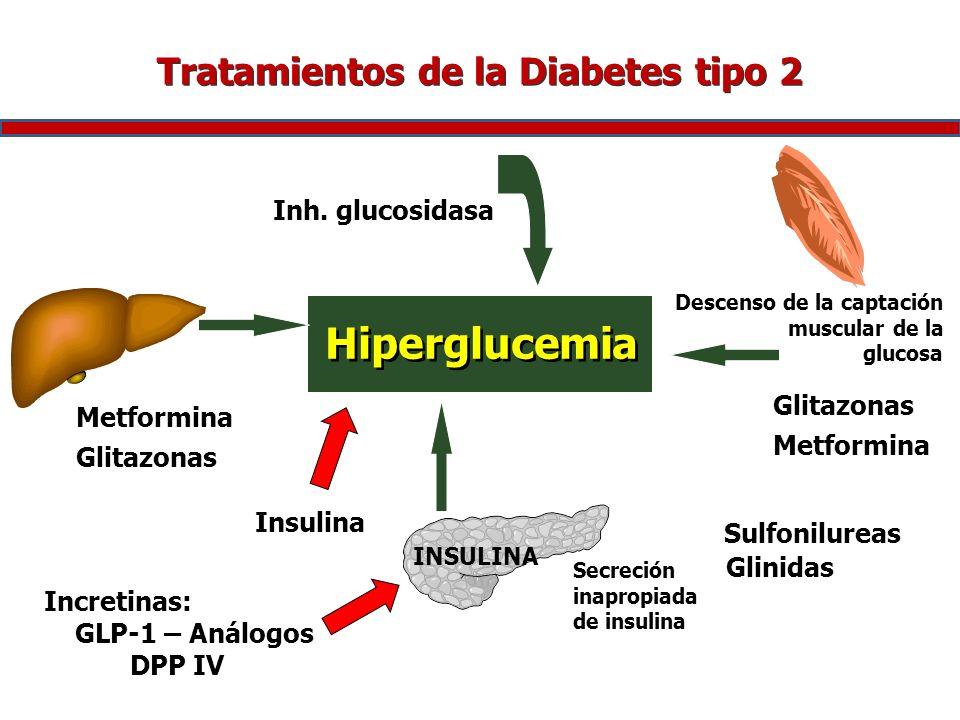 Tratamientos de la Diabetes tipo 2