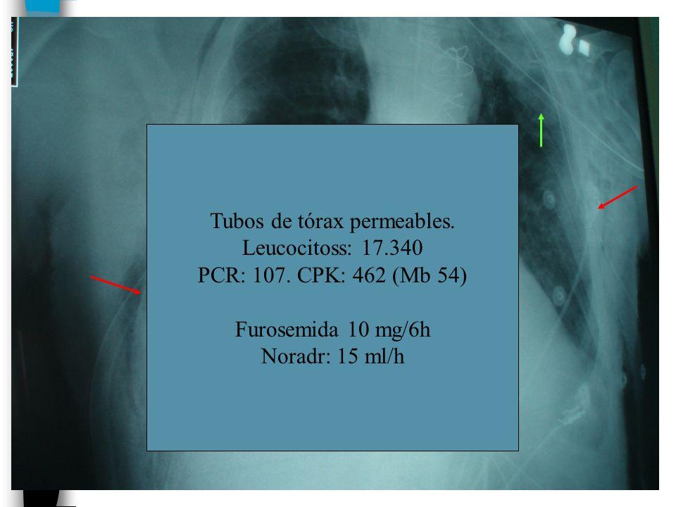 Tubos de tórax permeables.