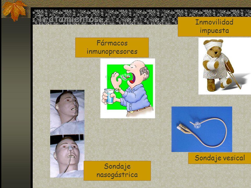 Fármacos inmunopresores