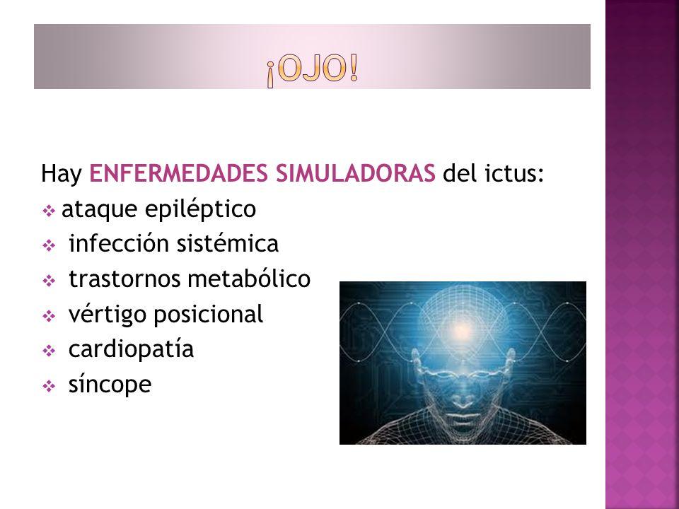 ¡OJO! Hay ENFERMEDADES SIMULADORAS del ictus: ataque epiléptico