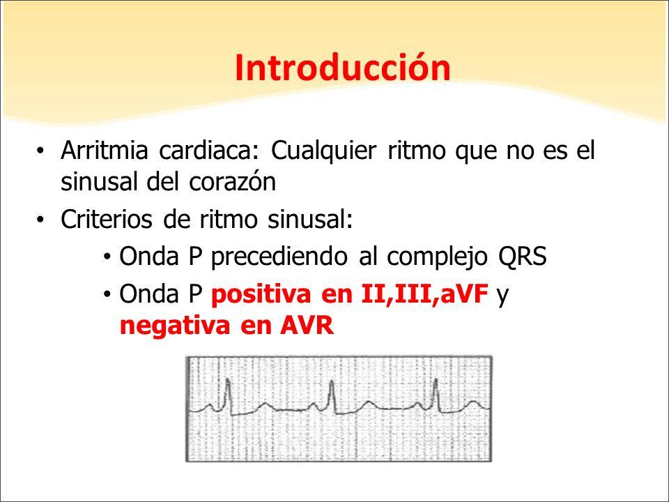 Introducción Arritmia cardiaca: Cualquier ritmo que no es el sinusal del corazón. Criterios de ritmo sinusal: