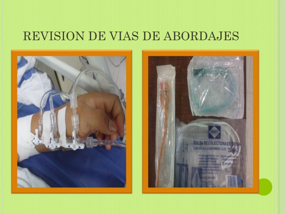 REVISION DE VIAS DE ABORDAJES