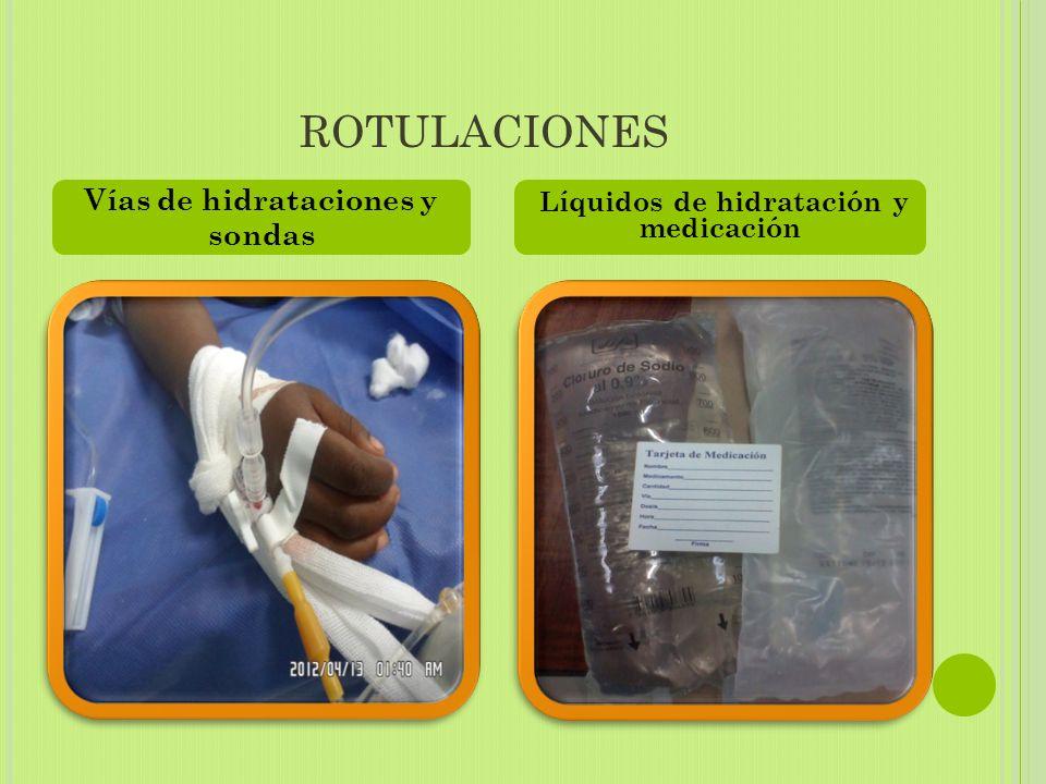 Vías de hidrataciones y sondas Líquidos de hidratación y medicación