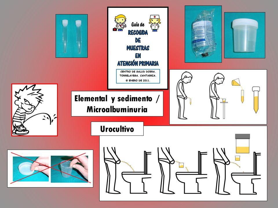 Elemental y sedimento / Microalbuminuria