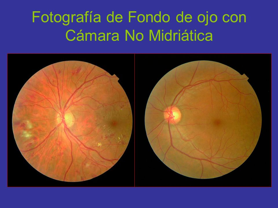 Fotografía de Fondo de ojo con Cámara No Midriática