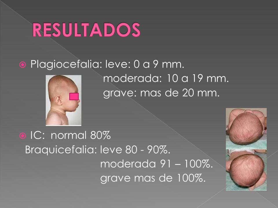 RESULTADOS Plagiocefalia: leve: 0 a 9 mm. moderada: 10 a 19 mm.