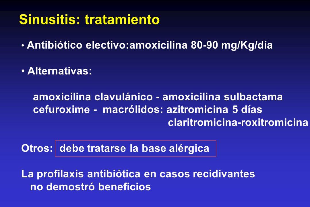 Sinusitis: tratamiento