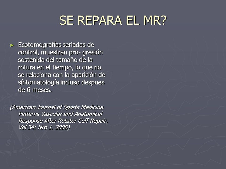 SE REPARA EL MR