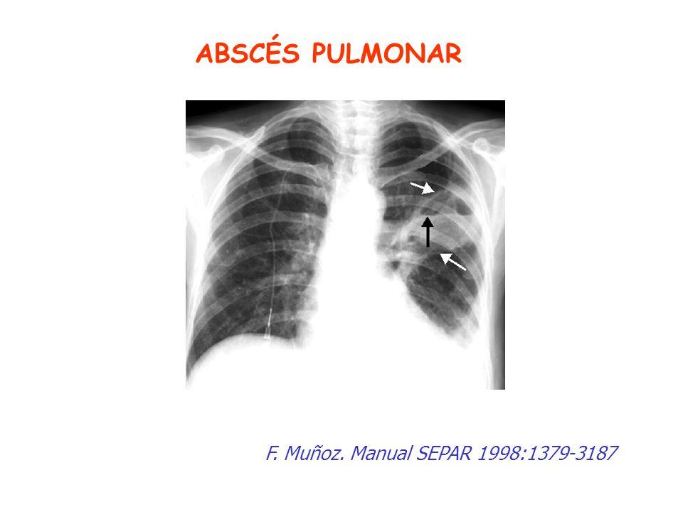 ABSCÉS PULMONAR F. Muñoz. Manual SEPAR 1998:1379-3187