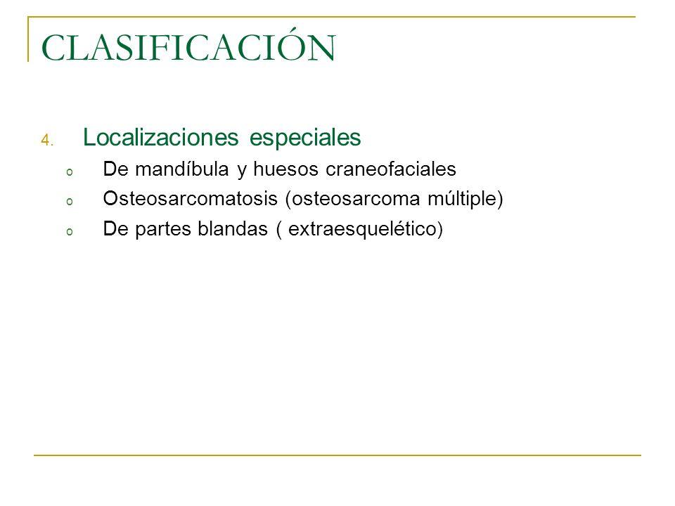 CLASIFICACIÓN Localizaciones especiales