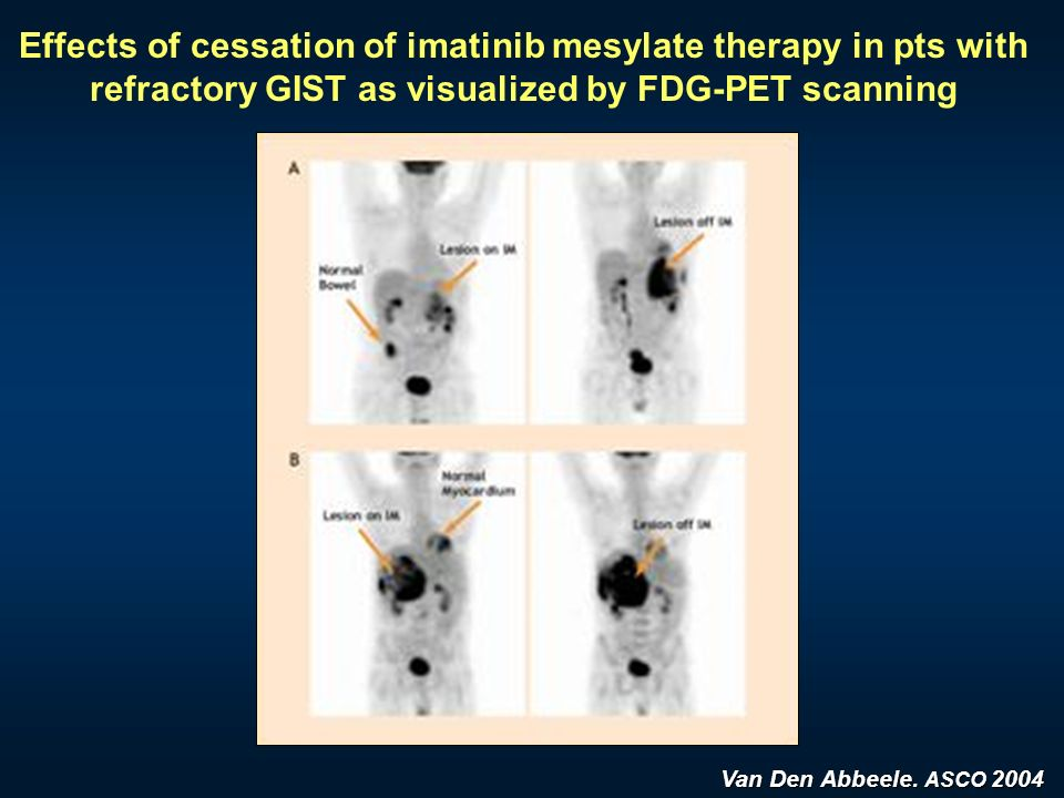Effects of cessation of imatinib mesylate therapy in pts with refractory GIST as visualized by FDG-PET scanning
