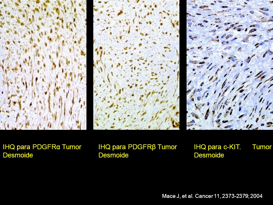 IHQ para PDGFRα Tumor Desmoide IHQ para PDGFRβ Tumor Desmoide