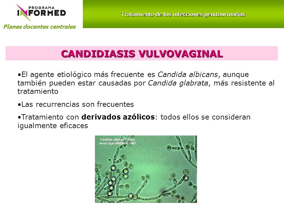 CANDIDIASIS VULVOVAGINAL