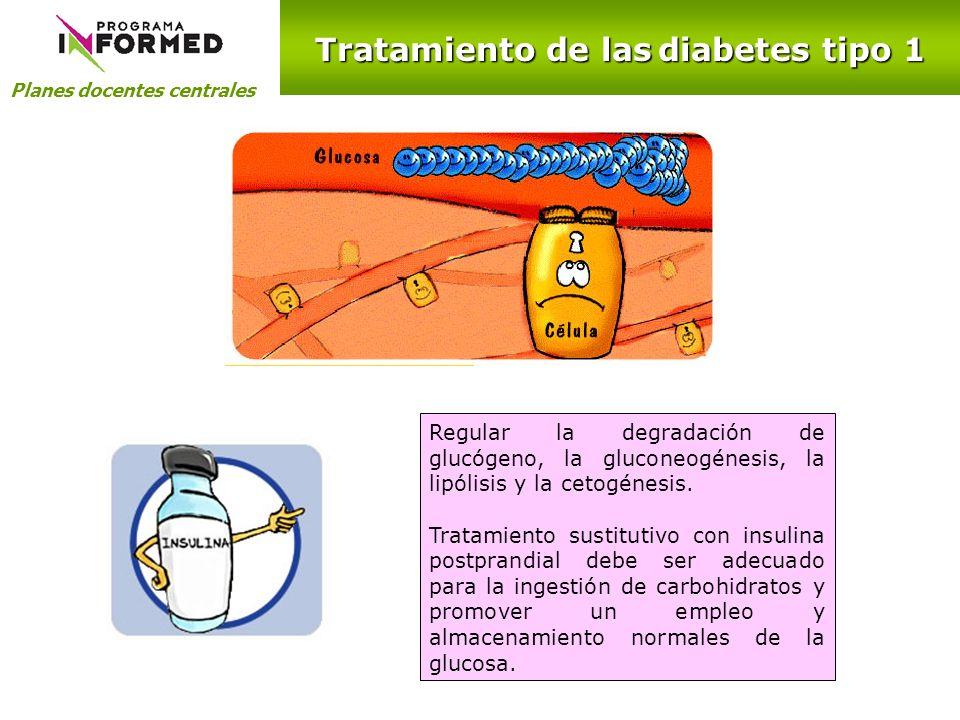 Tratamiento de las diabetes tipo 1