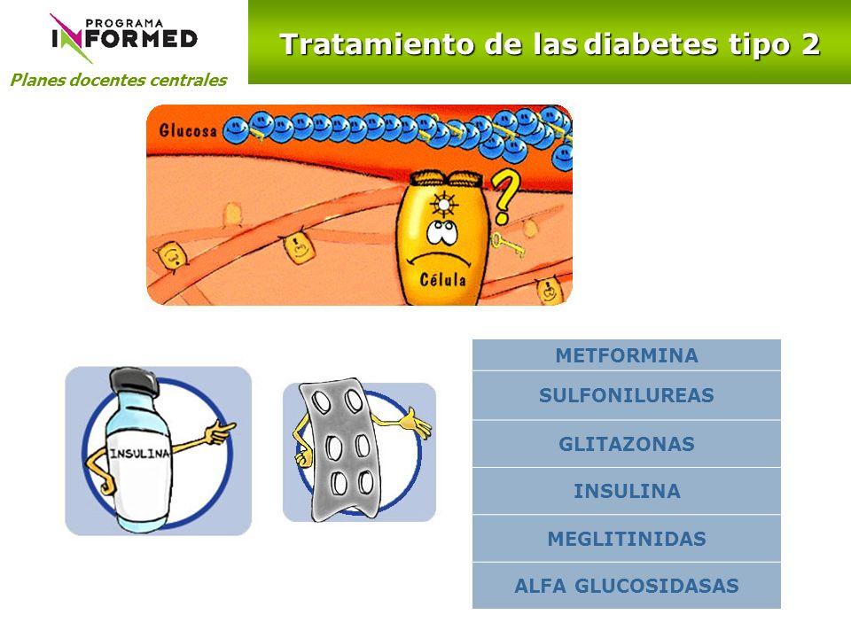Tratamiento de las diabetes tipo 2