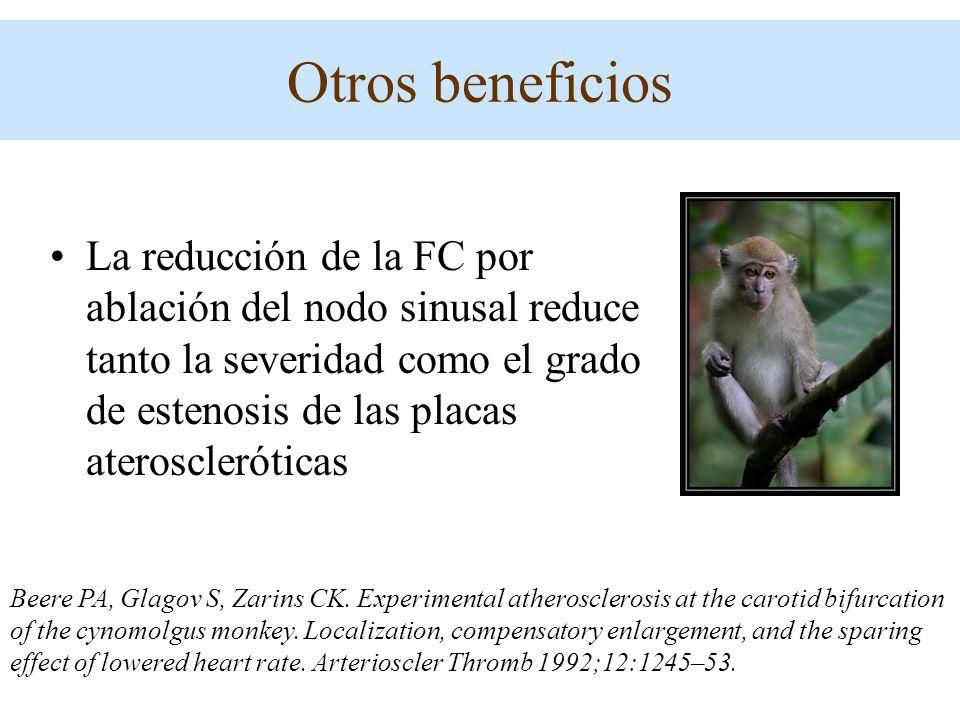 Otros beneficios