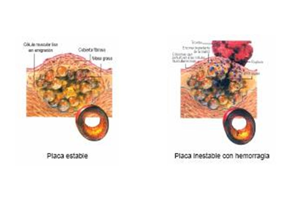 ) Angina Estable: Consiste en dolor habitualmente crónico, producido por obstrucciones fijas de las arterias coronarias que impiden el flujo adecuado durante el ejercicio, en el cual se hace evidente. Característicamente disminuye con el reposo y responde al tratamiento médico.