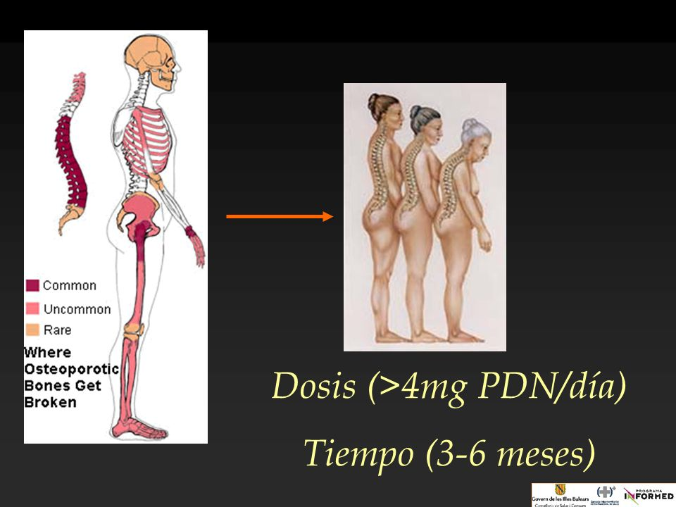 Dosis (>4mg PDN/día)