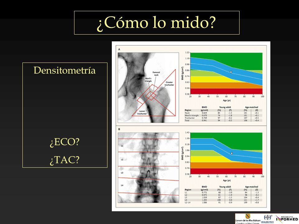 ¿Cómo lo mido Densitometría ¿ECO ¿TAC