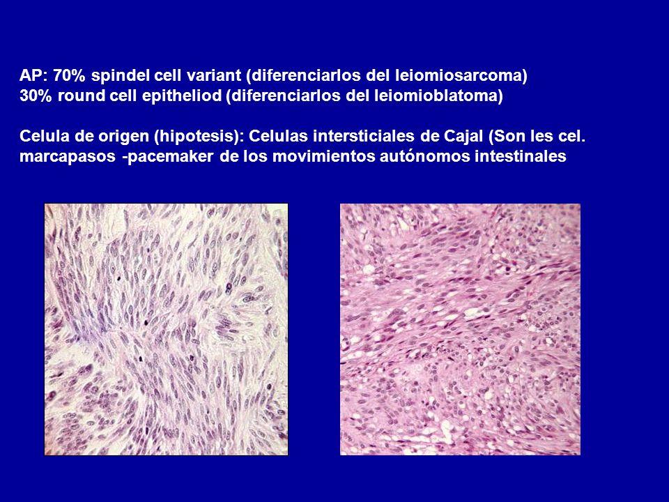 AP: 70% spindel cell variant (diferenciarlos del leiomiosarcoma)