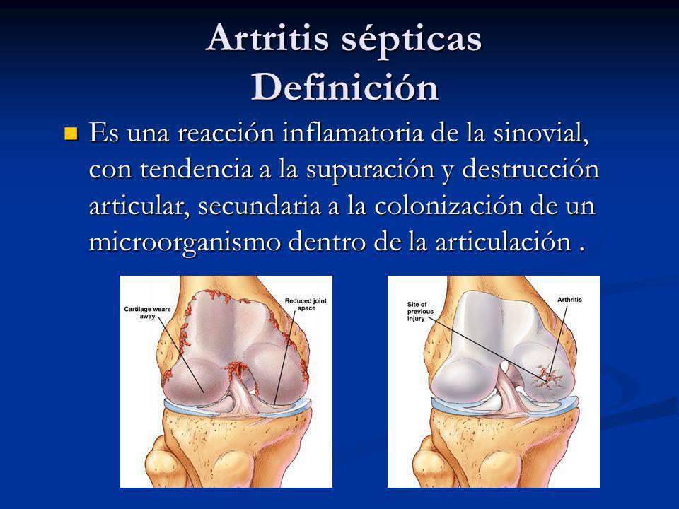 Artritis sépticas Definición