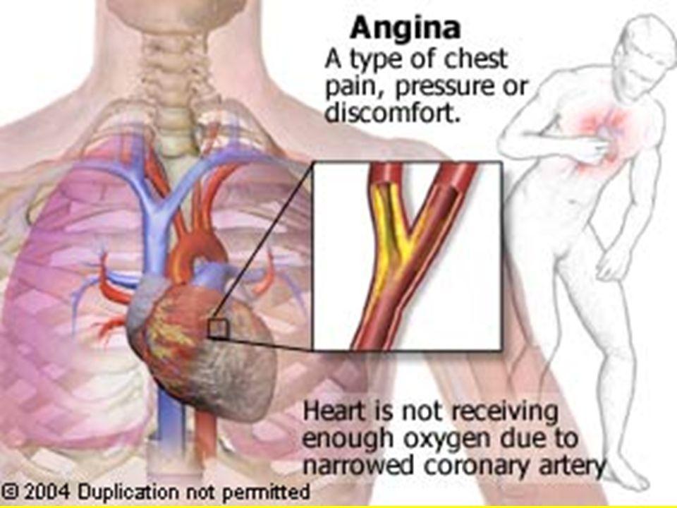 La angina de pecho es el dolor producido en el pecho cuando no llega suficiente aporte sanguineo al corazón, Existen dos tipos de angina de pecho: