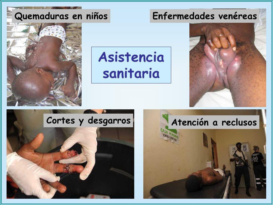 Asistencia sanitaria Quemaduras en niños Enfermedades venéreas