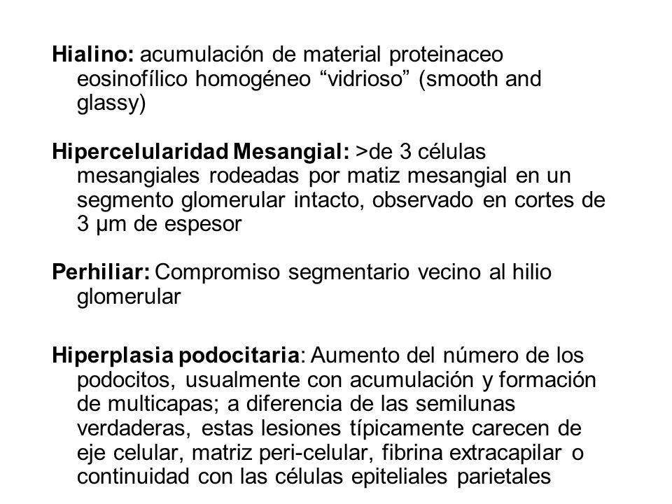Hialino: acumulación de material proteinaceo eosinofílico homogéneo vidrioso (smooth and glassy)