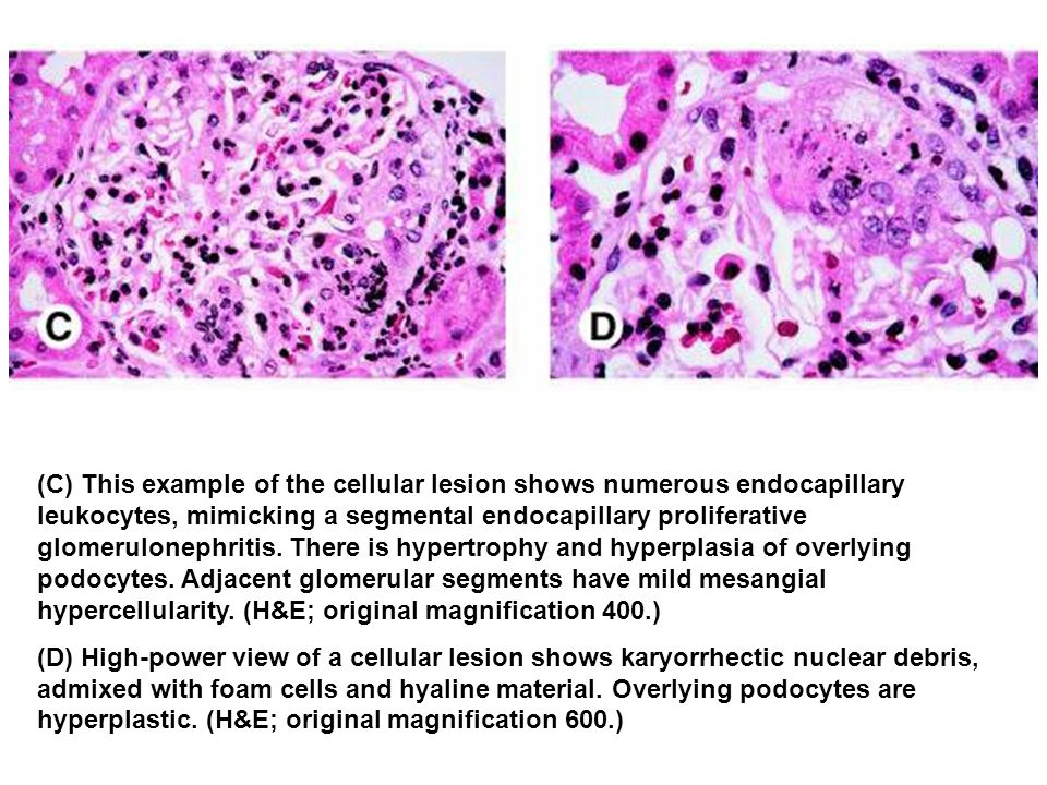 (C) This example of the cellular lesion shows numerous endocapillary leukocytes, mimicking a segmental endocapillary proliferative glomerulonephritis. There is hypertrophy and hyperplasia of overlying podocytes. Adjacent glomerular segments have mild mesangial hypercellularity. (H&E; original magnification 400.)