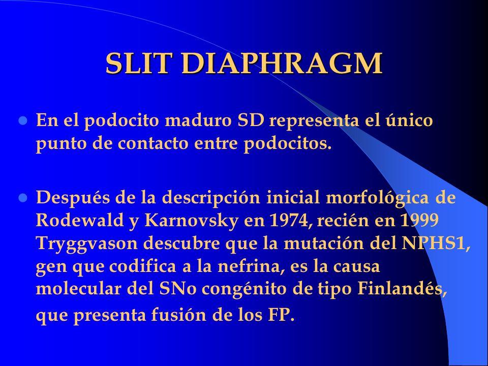 SLIT DIAPHRAGM En el podocito maduro SD representa el único punto de contacto entre podocitos.