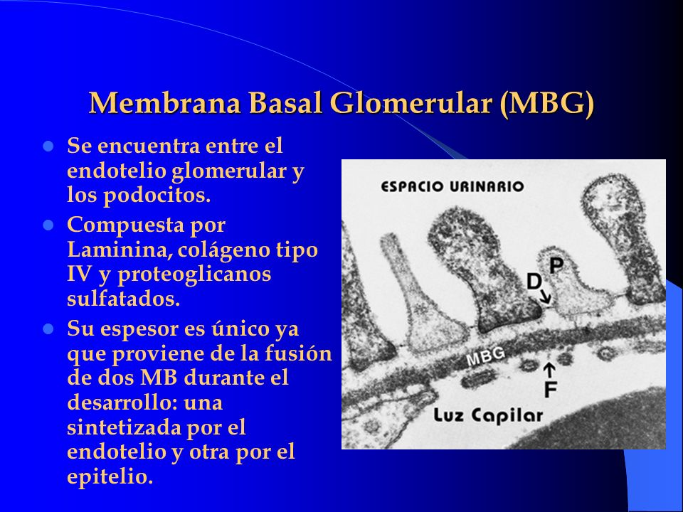 Membrana Basal Glomerular (MBG)