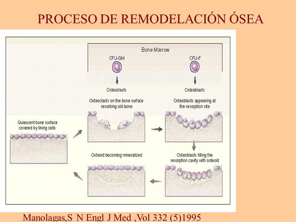 PROCESO DE REMODELACIÓN ÓSEA