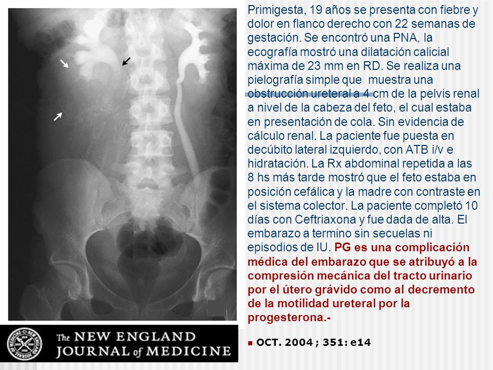Primigesta, 19 años se presenta con fiebre y dolor en flanco derecho con 22 semanas de gestación. Se encontró una PNA, la ecografía mostró una dilatación calicial máxima de 23 mm en RD. Se realiza una pielografía simple que muestra una obstrucción ureteral a 4 cm de la pelvis renal a nivel de la cabeza del feto, el cual estaba en presentación de cola. Sin evidencia de cálculo renal. La paciente fue puesta en decúbito lateral izquierdo, con ATB i/v e hidratación. La Rx abdominal repetida a las 8 hs más tarde mostró que el feto estaba en posición cefálica y la madre con contraste en el sistema colector. La paciente completó 10 días con Ceftriaxona y fue dada de alta. El embarazo a termino sin secuelas ni episodios de IU. PG es una complicación médica del embarazo que se atribuyó a la compresión mecánica del tracto urinario por el útero grávido como al decremento de la motilidad ureteral por la progesterona.-