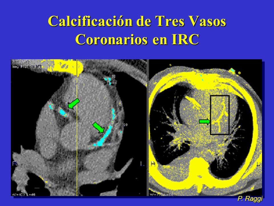 Calcificación de Tres Vasos Coronarios en IRC
