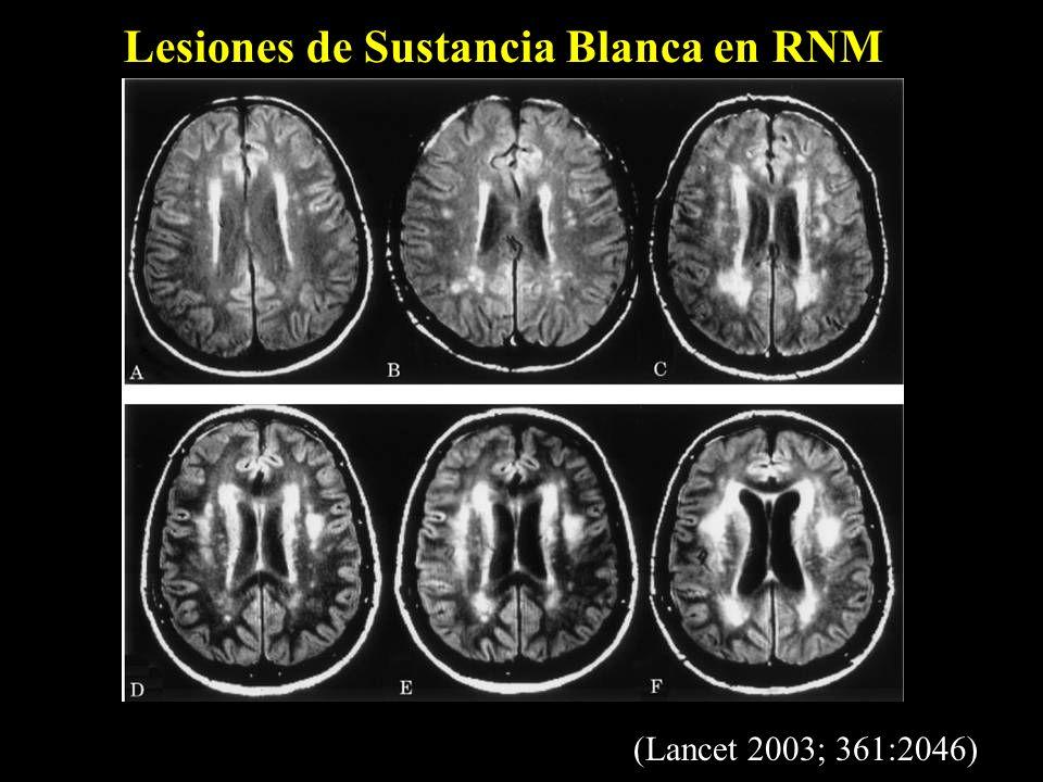 Lesiones de Sustancia Blanca en RNM