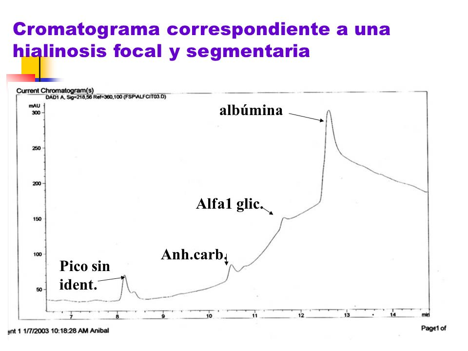 Cromatograma correspondiente a una hialinosis focal y segmentaria