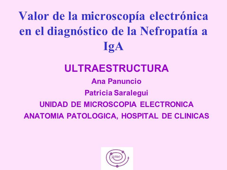 Valor de la microscopía electrónica en el diagnóstico de la Nefropatía a IgA