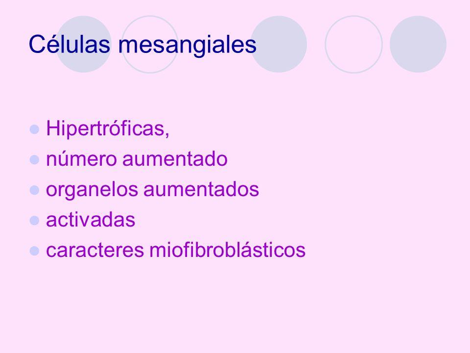 Células mesangiales Hipertróficas, número aumentado