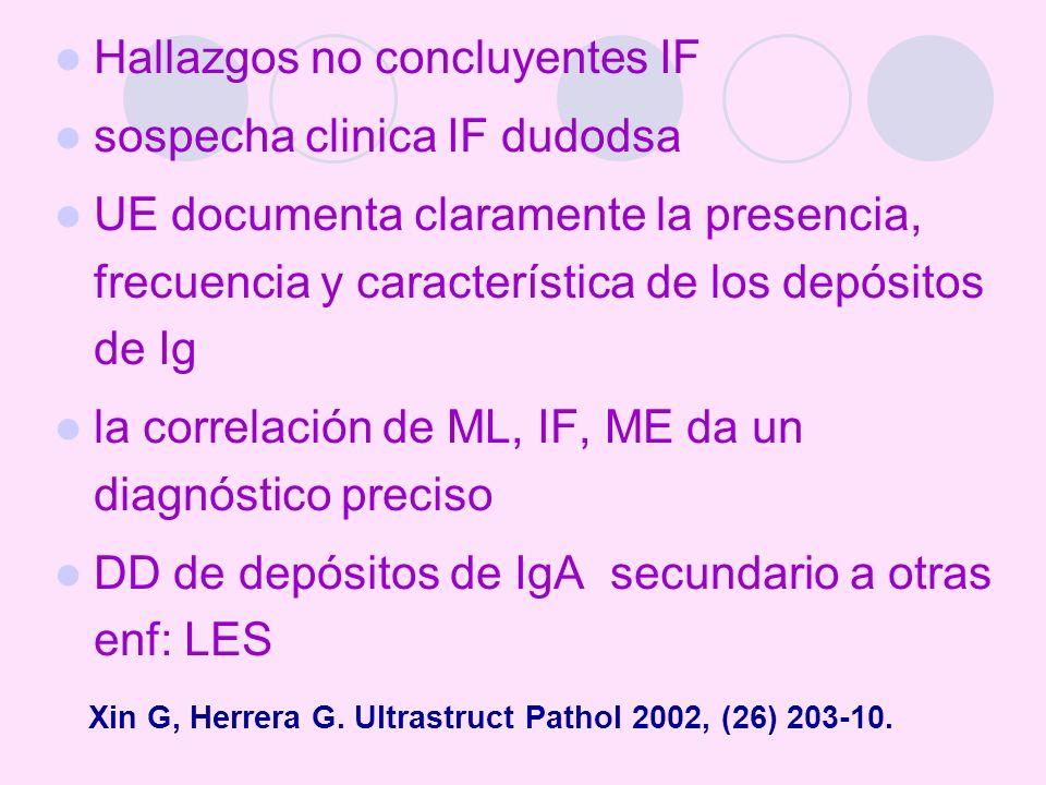 Xin G, Herrera G. Ultrastruct Pathol 2002, (26) 203-10.