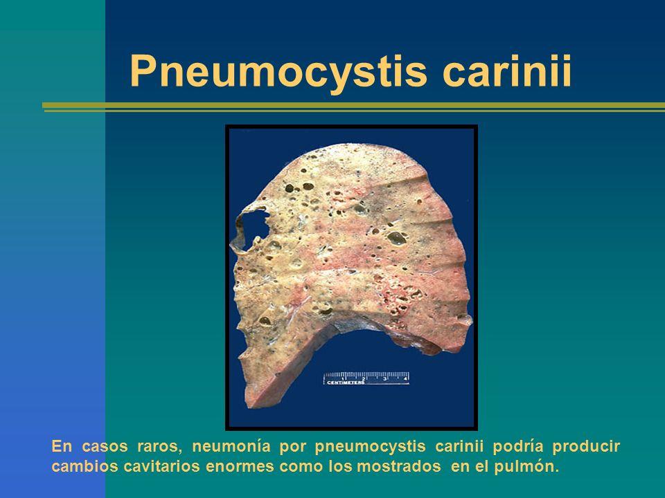 Pneumocystis cariniiEn casos raros, neumonía por pneumocystis carinii podría producir cambios cavitarios enormes como los mostrados en el pulmón.