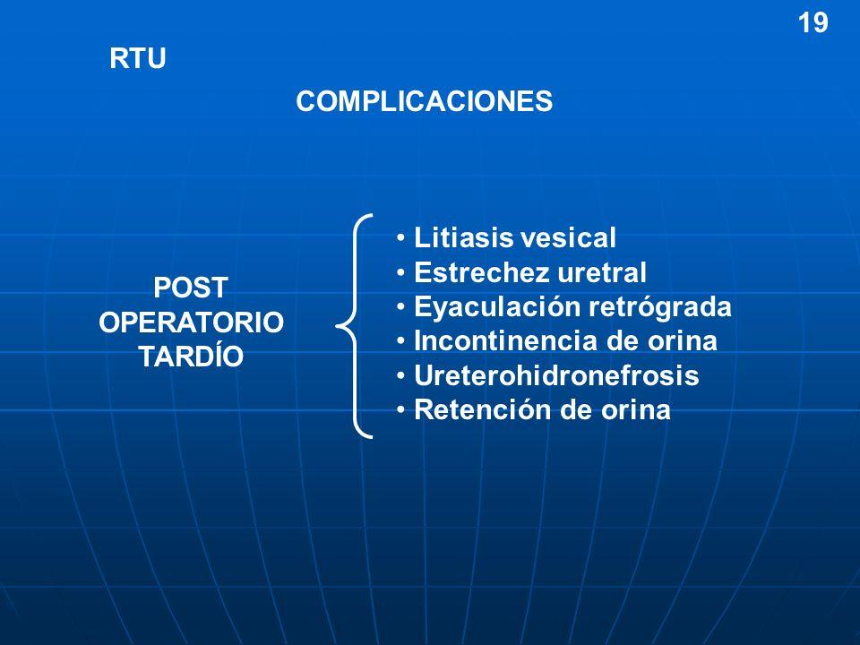 19RTU. COMPLICACIONES. Litiasis vesical. Estrechez uretral. Eyaculación retrógrada. Incontinencia de orina.