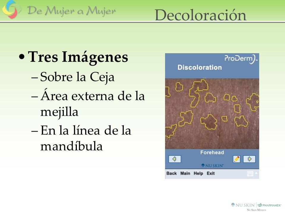 Decoloración Tres Imágenes Sobre la Ceja Área externa de la mejilla