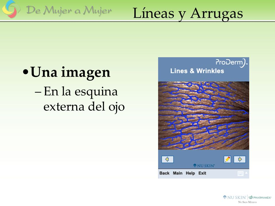 Líneas y Arrugas Una imagen En la esquina externa del ojo