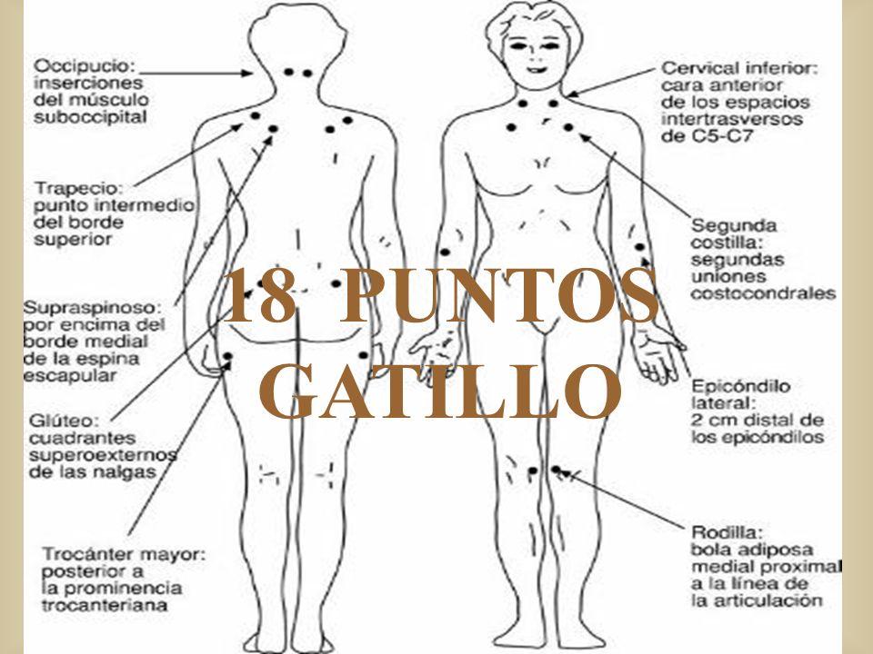18 PUNTOS GATILLO