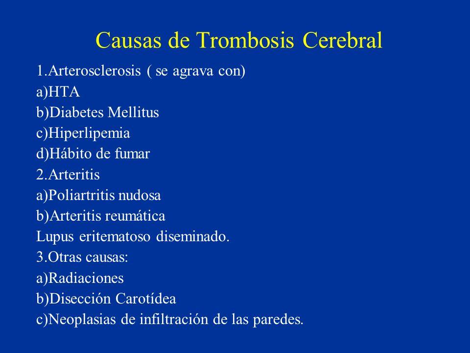Causas de Trombosis Cerebral