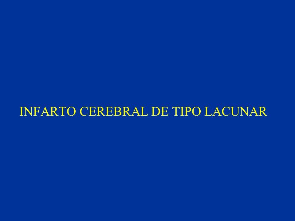 INFARTO CEREBRAL DE TIPO LACUNAR